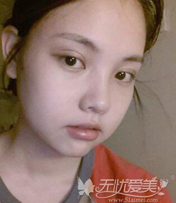在韩国原辰做双眼皮手术+面部轮廓手术后2周