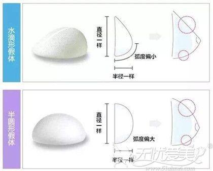 圆盘型隆胸和水滴型隆胸区别