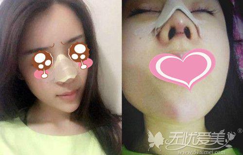 隆鼻后如何戴鼻夹板