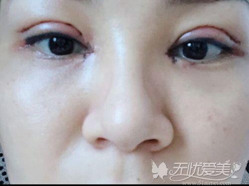 全切双眼皮+内眼角术后即刻效果