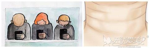 长时间低头是造成颈纹产生的原因