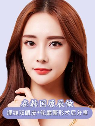 在韩国原辰做埋线双眼皮+颧骨+下颌角整形术后6个月分享
