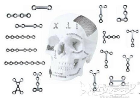 面部轮廓手术使用的钛钉
