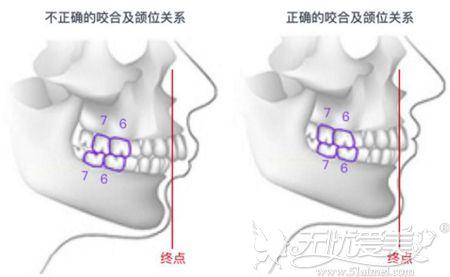牙齿畸形导致下巴后缩