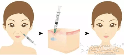 注射玻尿酸可以去除法令纹改善面部年轻化