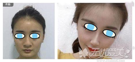 西安长安整形硅胶隆鼻案例
