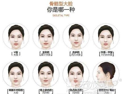 骨骼型大脸分类