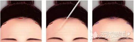 内窥镜额头提升的手术过程
