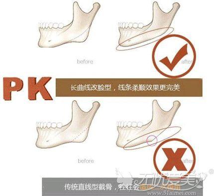 曲线下颌角截骨术可以让脸部线条更柔美