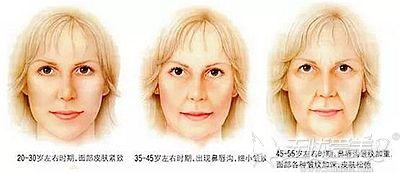 随着年龄的增长面部出现下垂