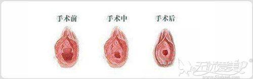 处女膜修复手术