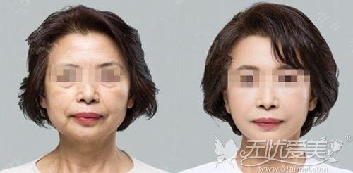 韩式综合面部提升案例