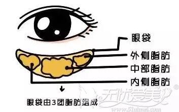 眼袋是由3团脂肪组成