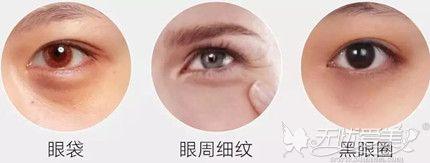常见的眼部衰老问题