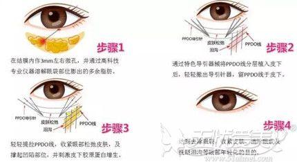 眼部线雕的手术步骤