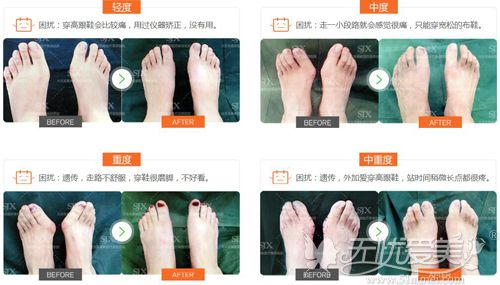 马桂文医生所做大脚骨治疗案例