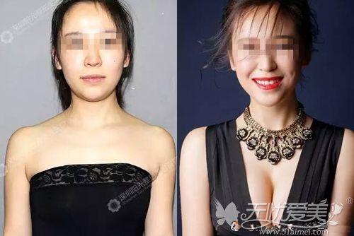 深圳阳光曼托假体隆胸案例
