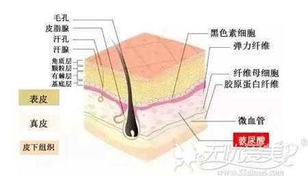 玻尿酸注射除皱