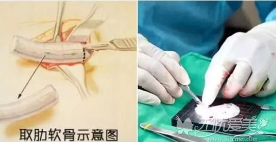 肋软骨做隆鼻失败修复材料