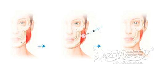 瘦脸针的注射原理