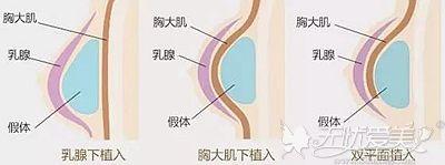 假体隆胸的假体植入位置