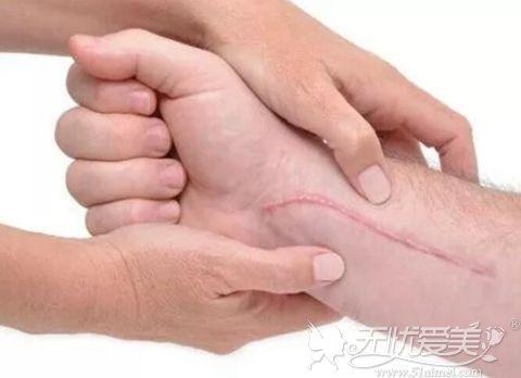 陈旧性疤痕可以用激光祛除吗?