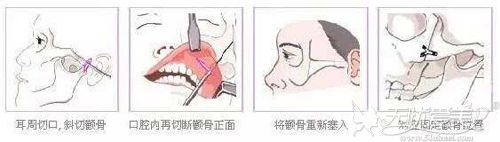 颧弓内推手术的原理