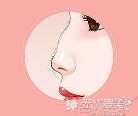 驼峰鼻表现为鼻梁部凸起