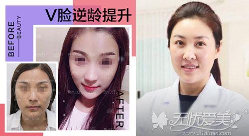 北京叶美人面部线雕提升案例