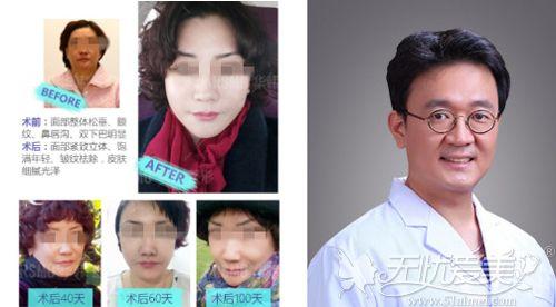 北京花宴面部提升真实案例