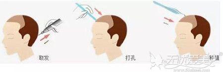 头发加密手术过程