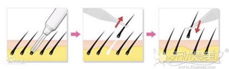 头发加密手术取毛囊的过程