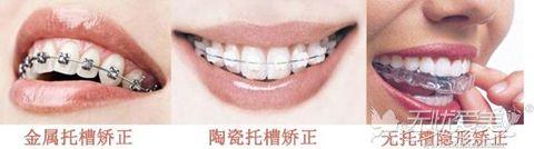 错颌做牙齿矫正术后戴牙套