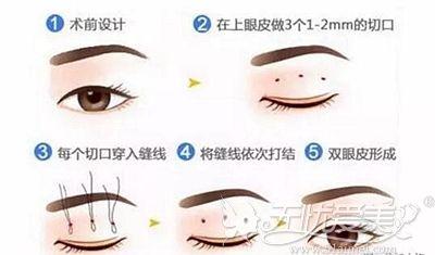 韩式三点双眼皮的手术原理