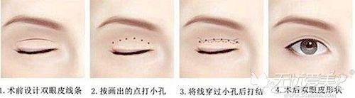 埋线双眼皮的手术过程解析