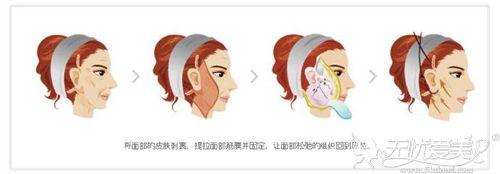 面部切除提升术手术过程