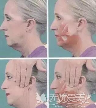 切除皮肤的位置