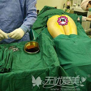 大腿吸脂手术中