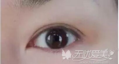 双眼皮术后红肿淤青期
