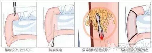腰腹吸脂的原理