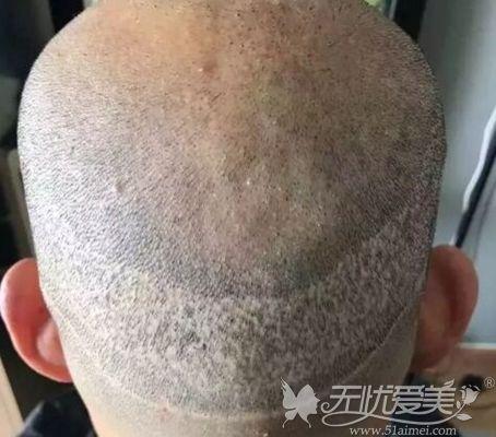 毛发移植失败后枕部留下瘢痕