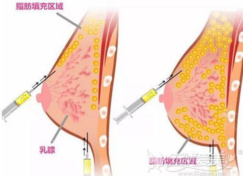 脂肪丰胸原理