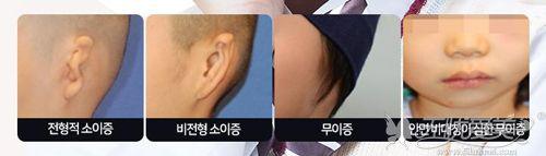 小耳症的类型