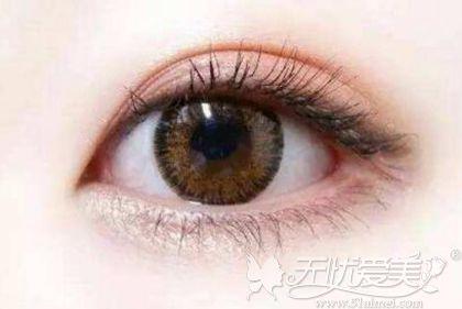 双眼皮术前面诊不可化妆