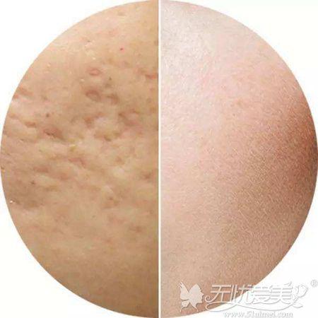 面部出现痘坑和正常皮肤的差距