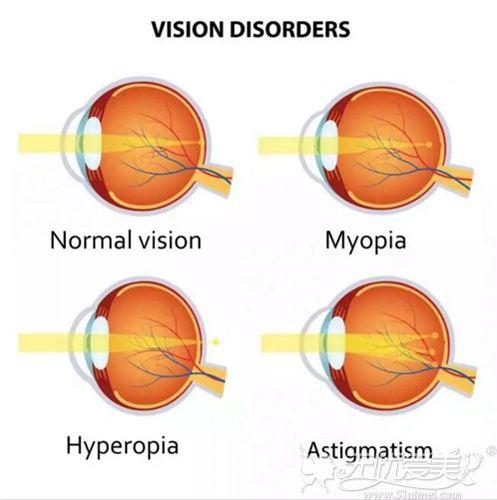 常视力与近视眼、远视眼、散光眼的眼球对比