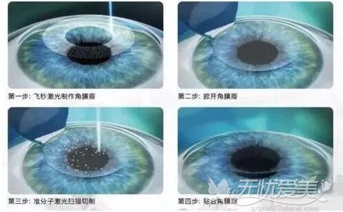 近视眼激光手术原理