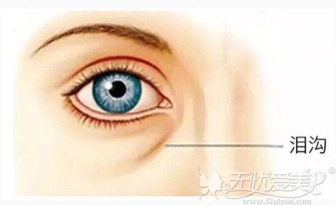 泪沟常常使一个人面部呈现憔悴没精神