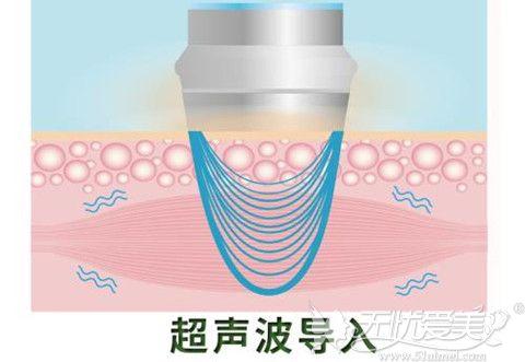 超声波导入去眼袋是目前比较受欢迎的方法