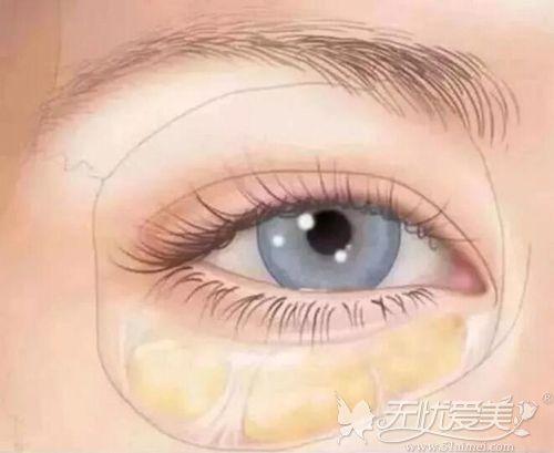 脂肪填充泪沟